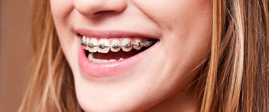 Terrigal Dental BracesCloseup